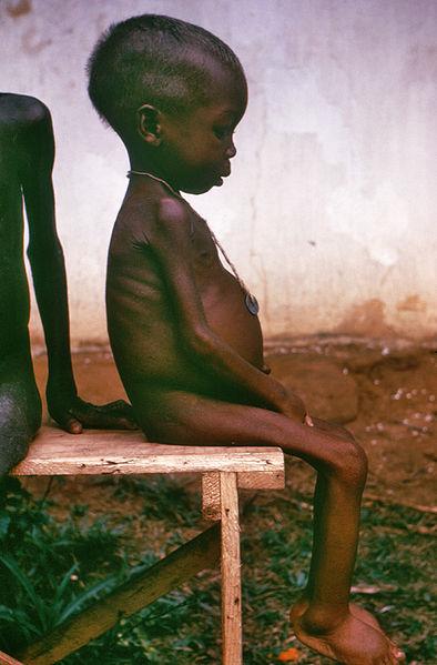 394px-starved_girl.jpg